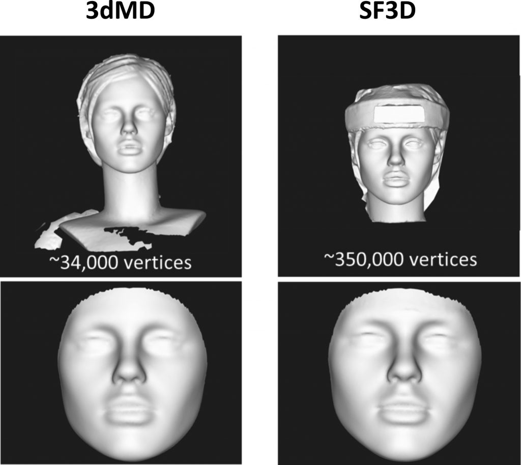 Fig. 4. The top panel represents the original meshes of the mannequin head acquired by the 3dMDFace system (left) and the SF3D system (right).